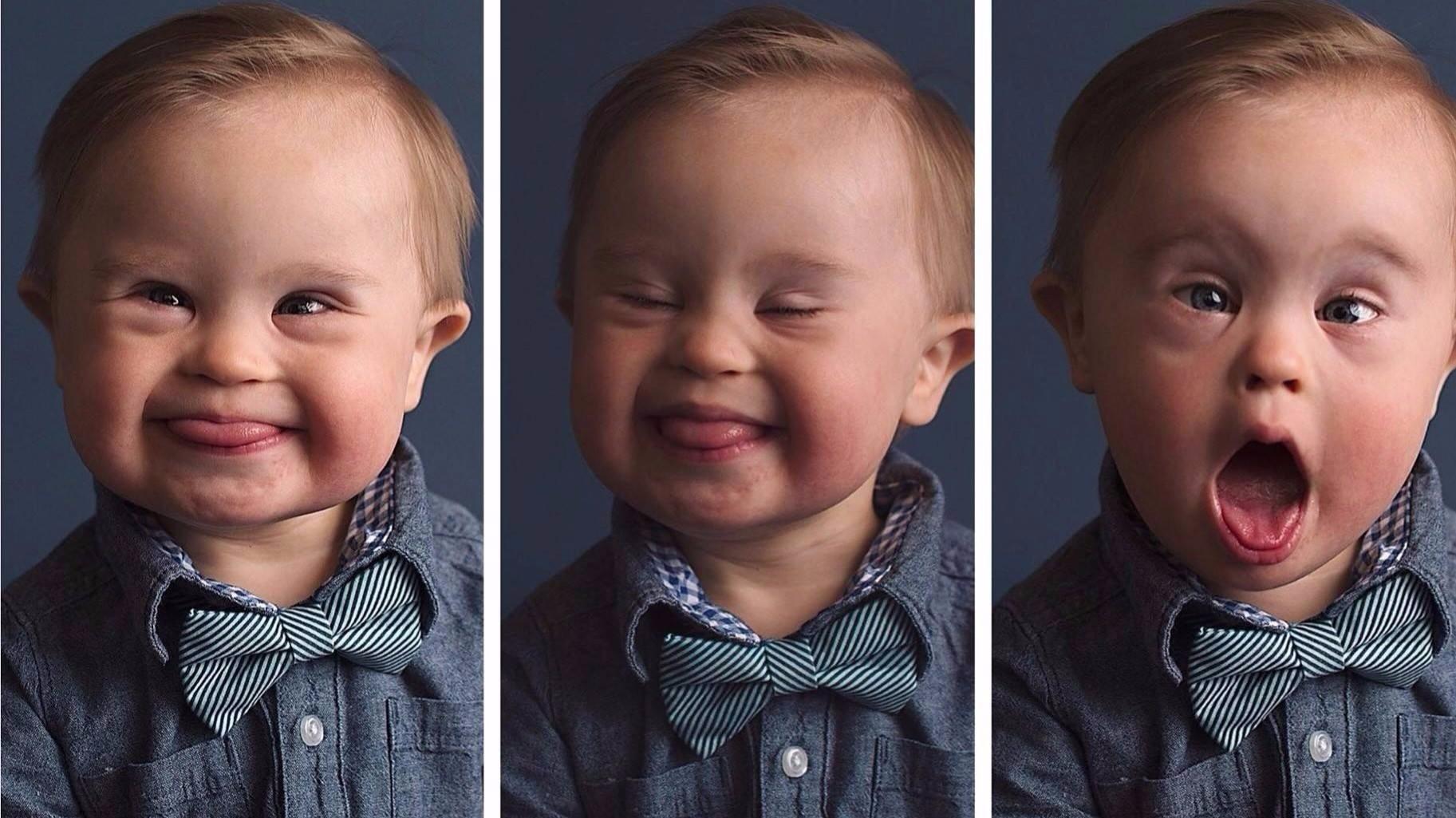 дети с синдромом даун картинки